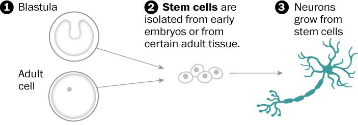Neural stem-cell transplants