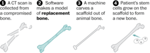 Custom-built bones