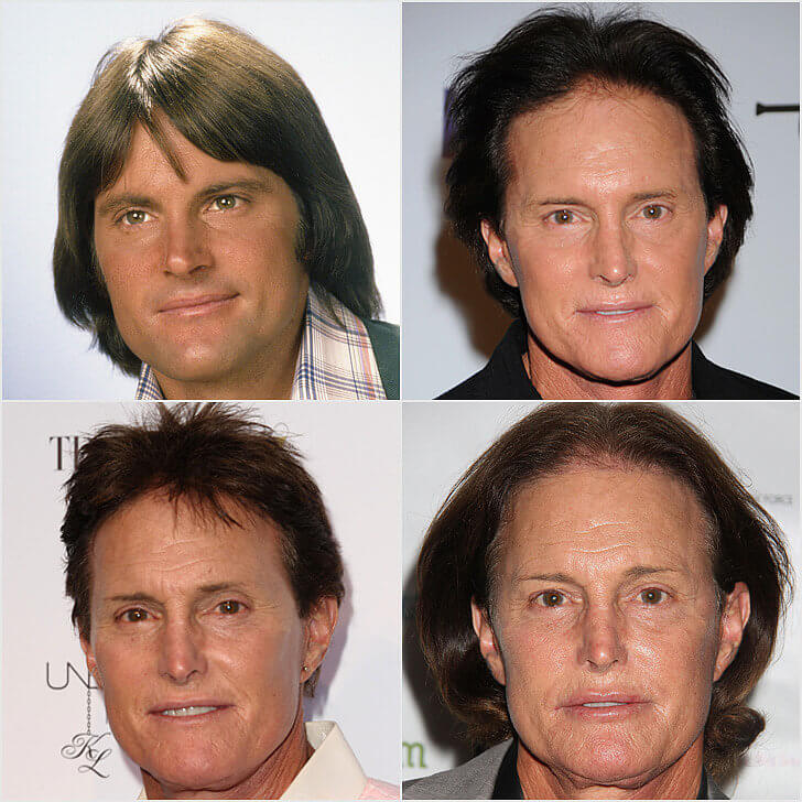 Bruce Jenner Transformation