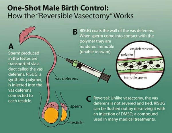 vasalgel-ou-la-contraception-au-masculin-sera-commercialisee-dici-2017-2