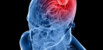 human brain with tumor
