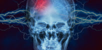 Cannabidiol for Seizures Shows Promise in New Study