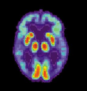 PET Alzheimer