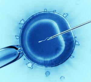 bigstock sperm injection