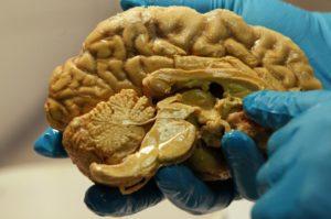brain x