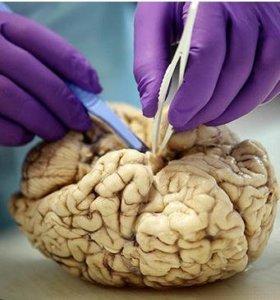 brain 12 19 17 3