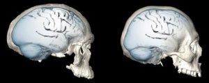 1-25-2018 brain