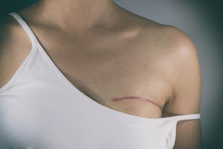 breast 5 7 18 2