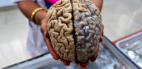 a formalin fixed human brain ready to be handed to visitors