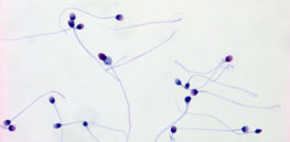1-14-2019 sperm feature human sperm