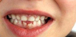 saving baby teeth when to pull baby teeth