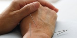 acupuncture on wrist