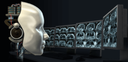 does ai mean the end is nigh for radiologists
