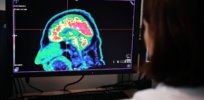 scientists can see suicide risks brain imaging