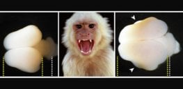 Planet of the Apes redux? Human brain gene inserted into monkey fetuses enlarged their brains, raising ethical concerns