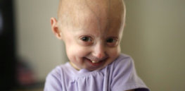 There are 400 children worldwide with progeria, a rapid-aging disease. Now there's a potential treatment