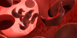 Cure for sickle cell diseases inches closer with launch of gene therapy trial