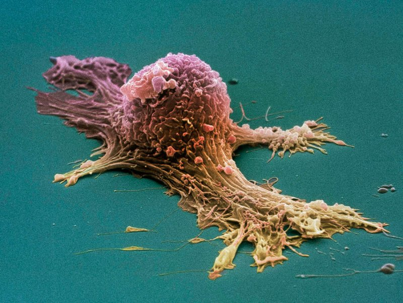ovarian cancer cell sem steve gschmeissner