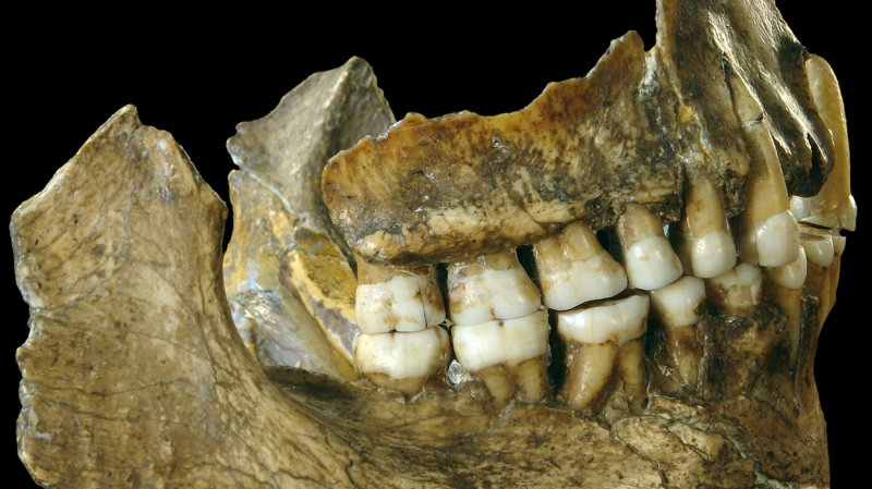 spy ii teeth wide df c bdb b ab f c ca a f