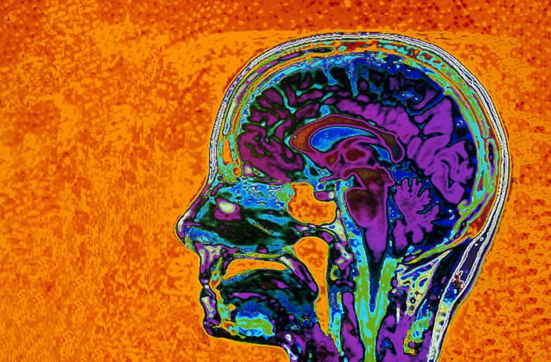 MRI BRAIN SCAN, MEDICAL TECHNOLOGY