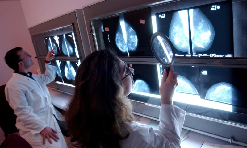Medics screen scans for breast cancer. Image: Garo/Phanie/Rex/Shutterstock