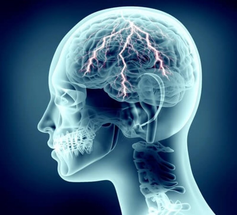 Brain Zapping Helps Concentration