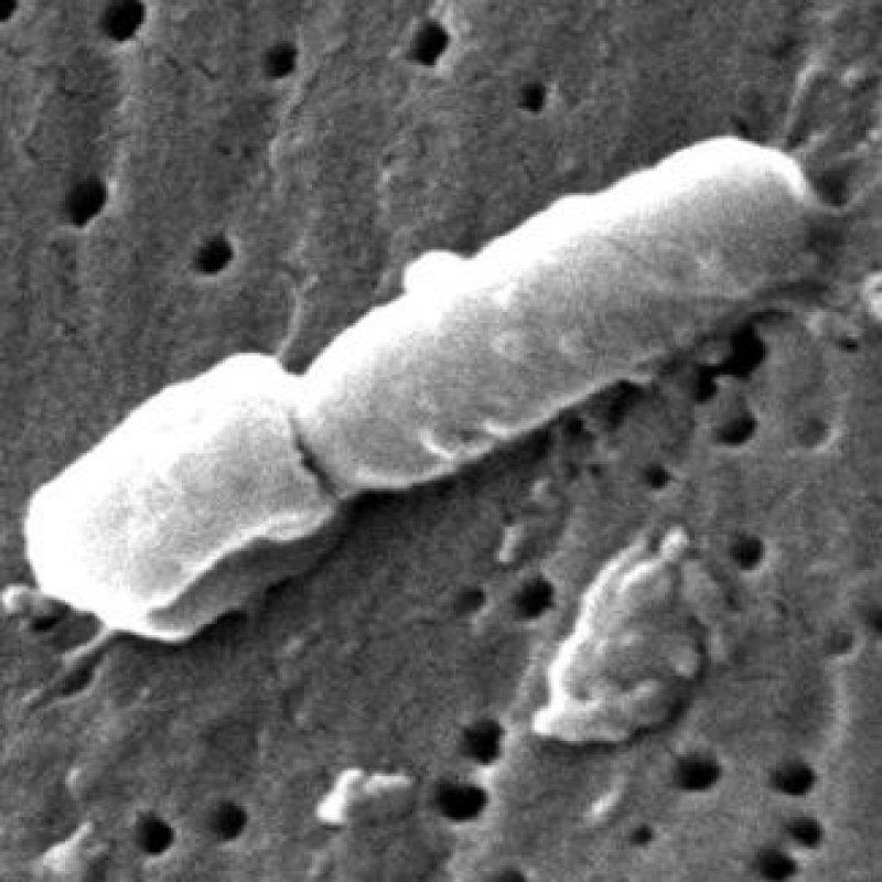 Klebsiella pneumoniae e