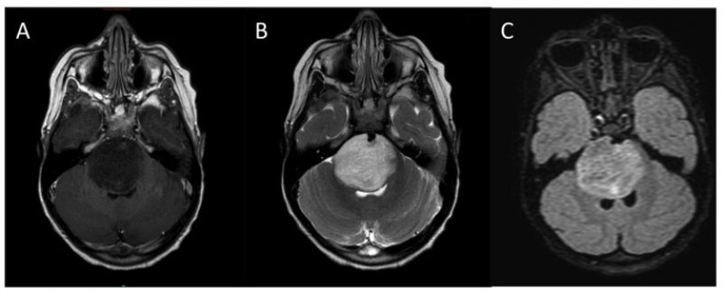Typica l MRI appearance of DIPG A T weighted post contrast B T weighted C FLAIR