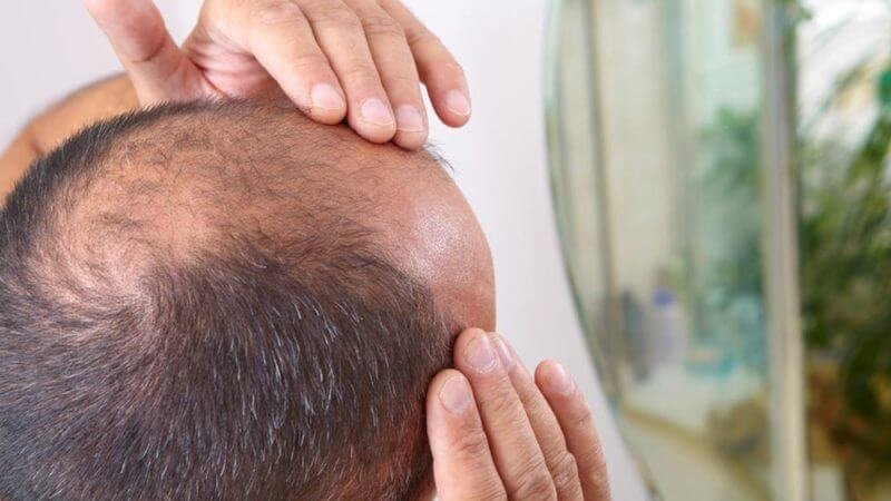 balding cutting edge treatment could be the end of baldness docent ft x