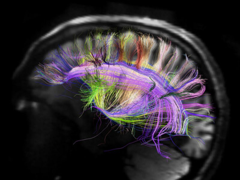 brain scans could replace the sat by