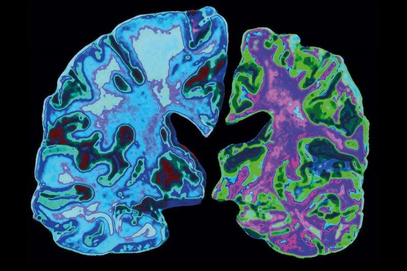 c alzheimer s disease spl