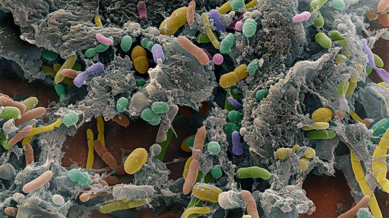 2-10-2019 cc gutmicrobiota x
