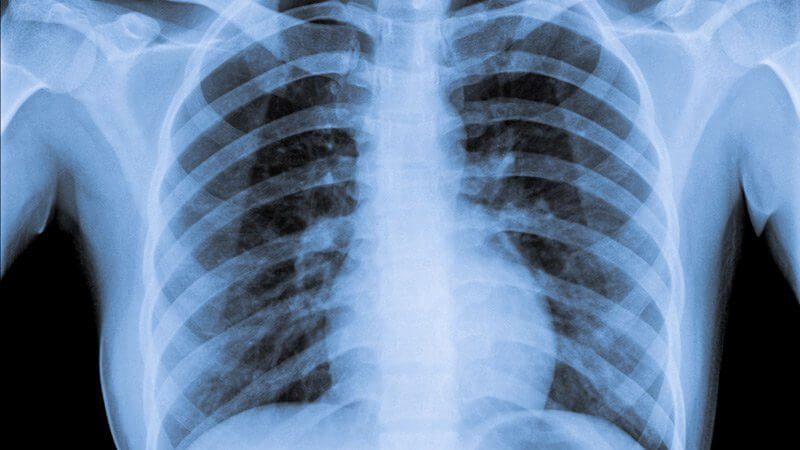 dt normal chest x ray x