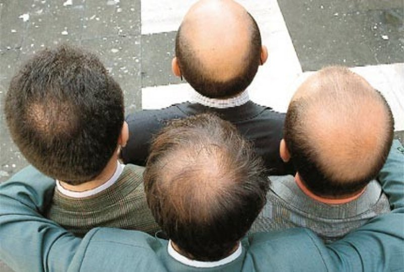 hair fall baldness x