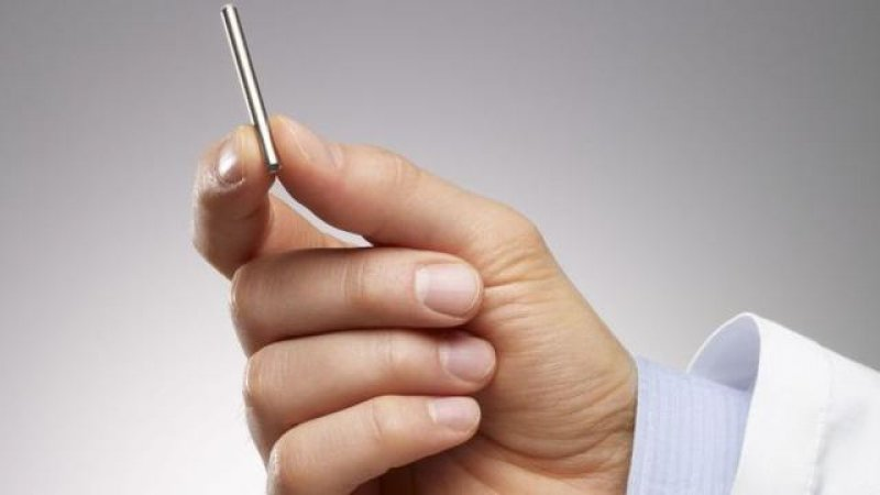 implan pencegah hiv intarcia therapeutic