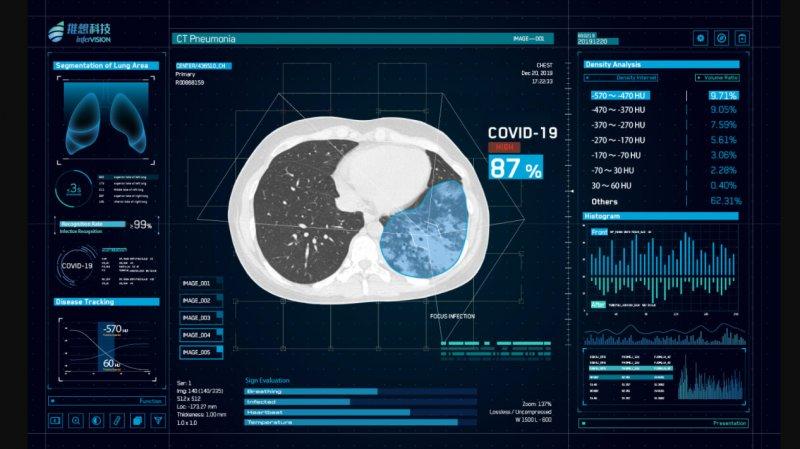 intervision ct pneumonia covid ai china