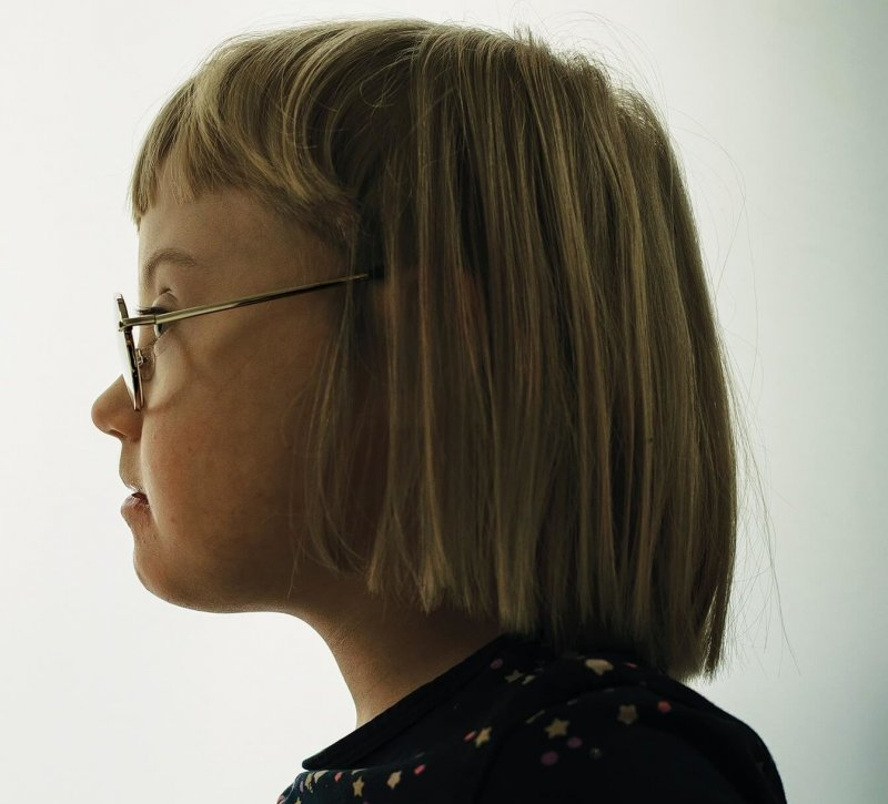 Sally Dybkjær Andersson, age 6, is one of very few children in Denmark with Down syndrome. Since universal prenatal screening was introduced in 2004, the number of children in the country born with the syndrome has fallen sharply. In 2019, it was just 18. Credit: Julia Sellmann