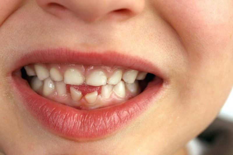 saving baby teeth when to pull baby teeth