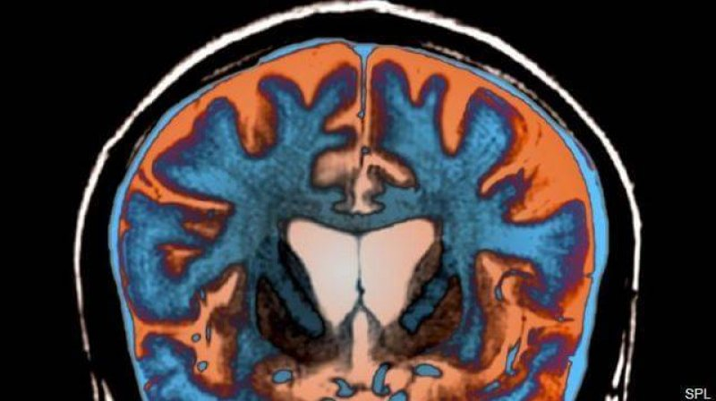 An MRI scan shows signs of atrophy in the brain of a patient with Huntington's disease. Credit: Science Photo Library/Science Source